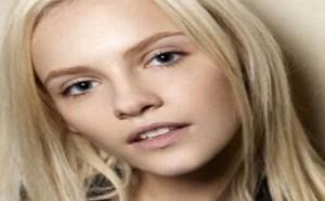 美容护肤:对付色斑针美肌再现不再难