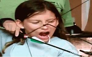 搞笑动态图片笑死人:超萌小女孩拔牙gif动态图
