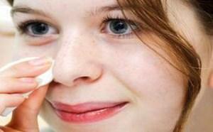 黑头挤完鼻子上有洞眼怎么处理